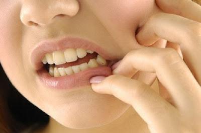 gangguan mulut