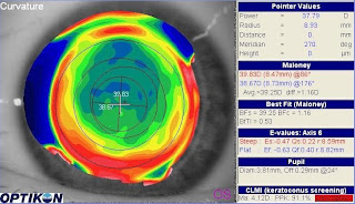 Pseudodecentered LASIK ablation after enhancement