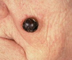 pictures skin cancer