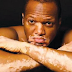 El sol también es un aliado contra el vitiligo