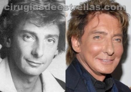 Barry Manilow antes y después