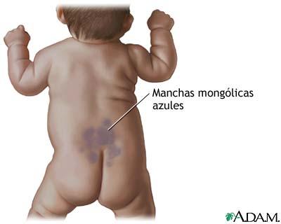 enfermedad congenital columna vertebral: