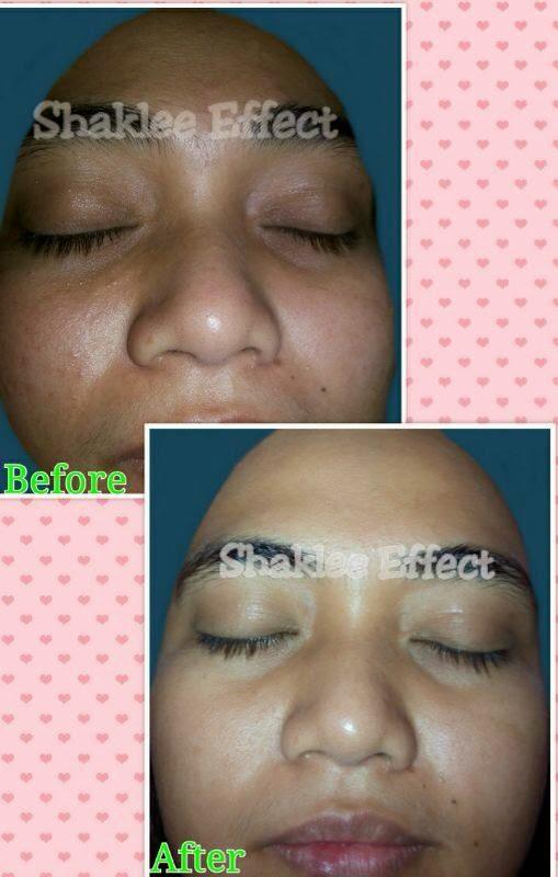 Testimoni Collagen Shaklee Kulit Cantik Dan Licin Dalam Masa 13 Hari