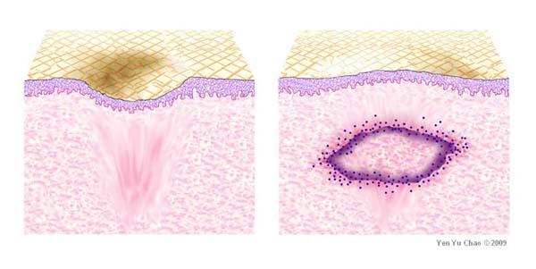 真皮移植治療青春痘疤