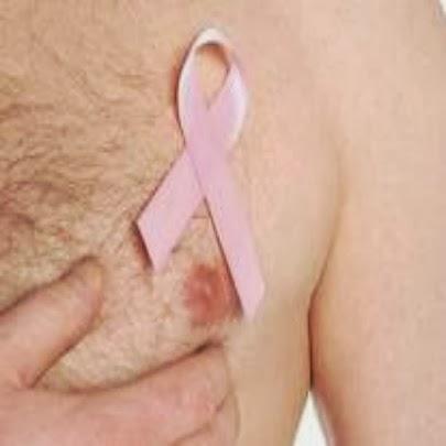 Câncer de mama - homens também são afetados