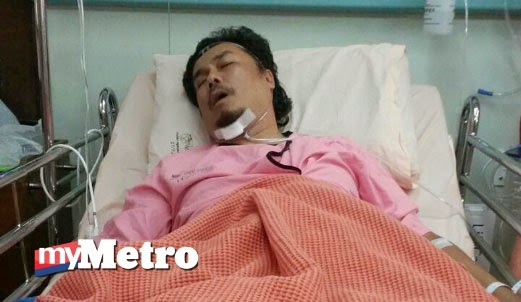 Azman Abu Hassan Kemalangan, Patah Tulang Rusuk