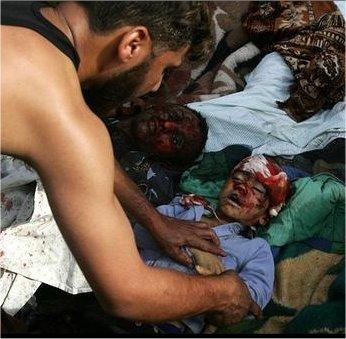 Korban Kejahatan Zionis Israel di Gaza Palestina