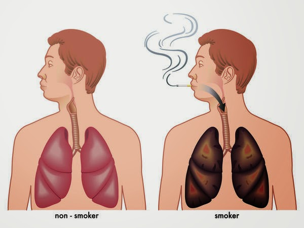 How To Detox Your Lungs After You Quit Smoking