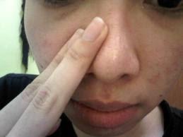 Menekan Hidung