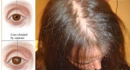 Simona de la chute des cheveux