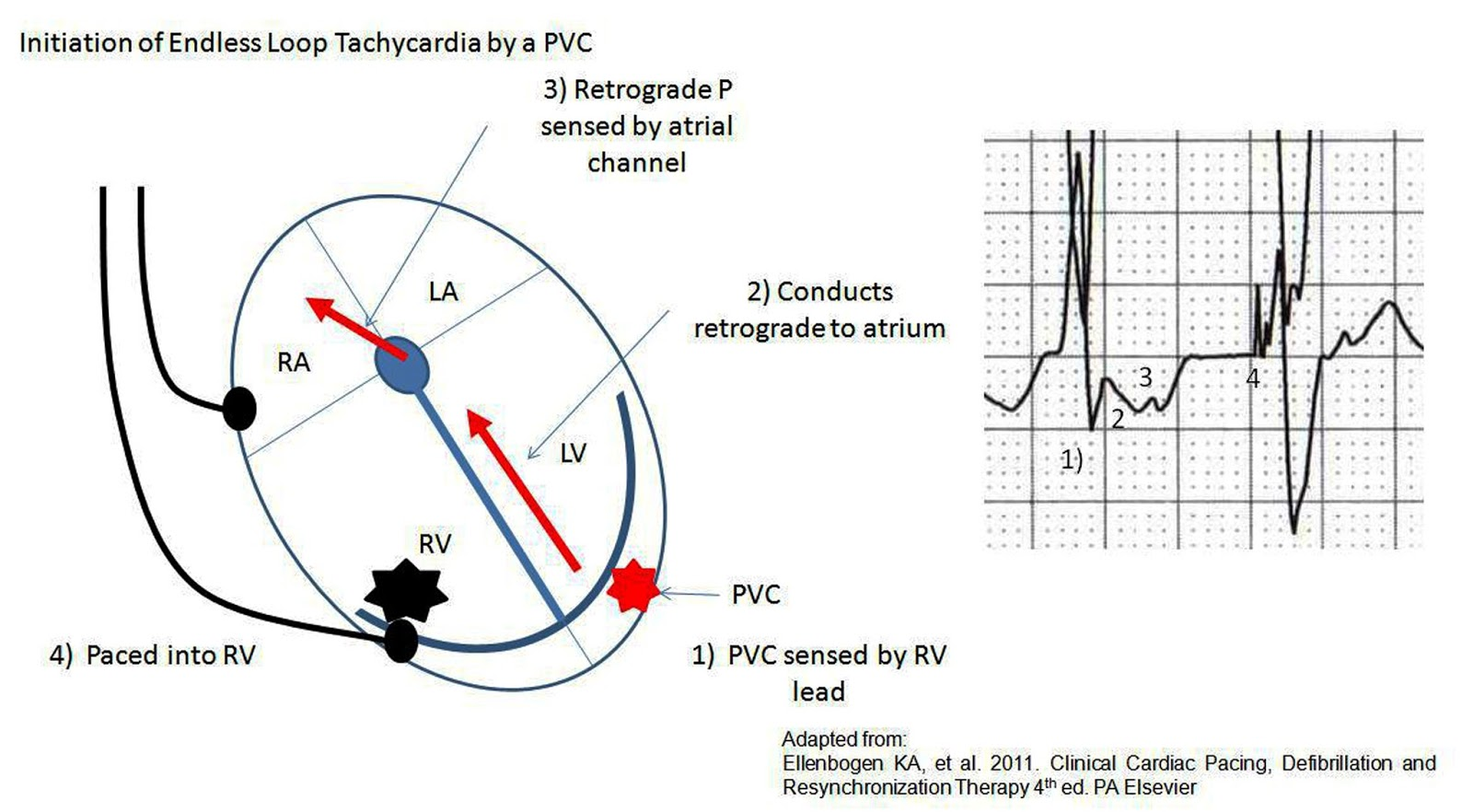 ecg rhythms  wide qrs tachycardia  wqrst  in a patient with a pacemaker