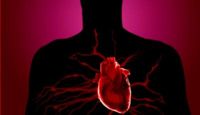 Cara mengobati Penyakit Jantung tanpa Operasi