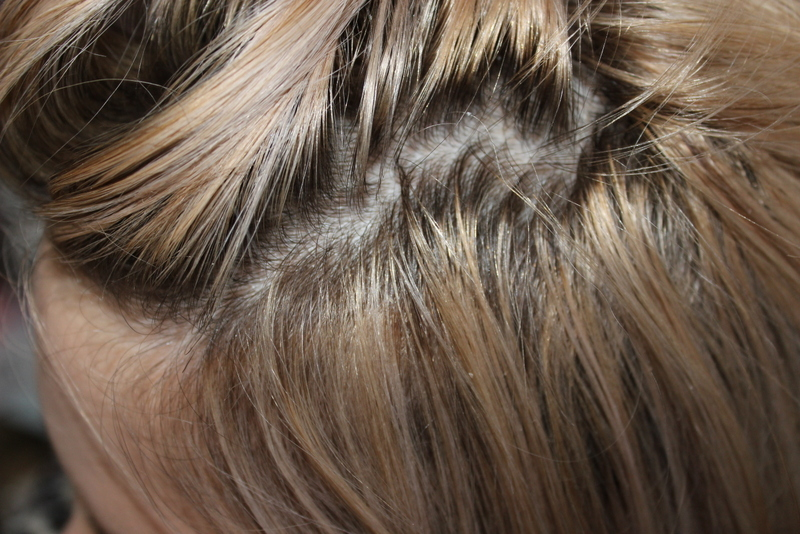 Viviscal hair loss concealer fibers – Trendy hairstyles in the USA