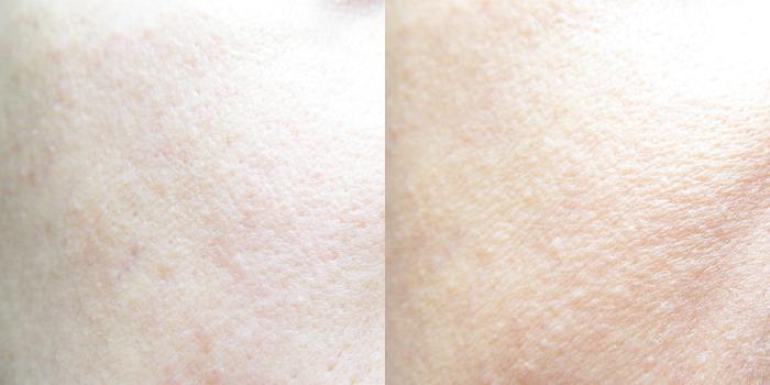 Vorher/Nachher : Avène - Hydrance Optimale Légère Skin Tone Perfector