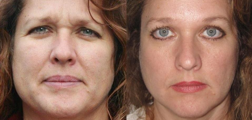 Have You Ever Contemplated Harnessing Face Yoga Exercises Here Is Why Ought To