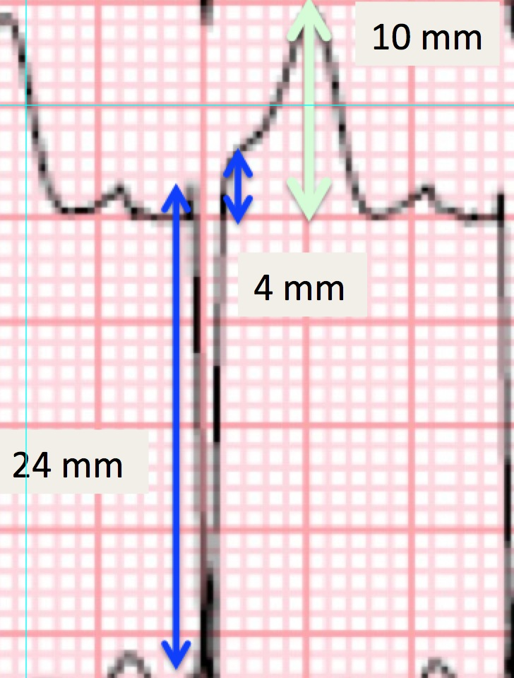 Dr Smith S ECG Blog LVH With Anterior ST Elevation When Is It