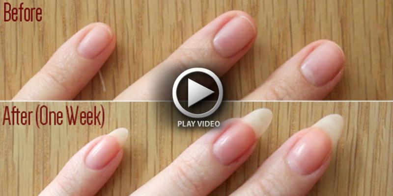 Resultado de imagen para crecimiento de uñas