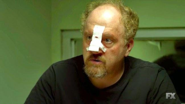 Louie, con la nariz rota, habla con su abogado en 'Model'