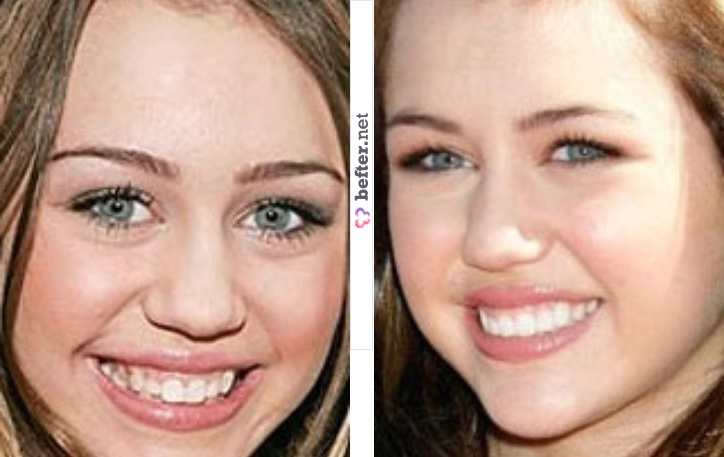 miley cyrus plastic surgery before and after nose job and