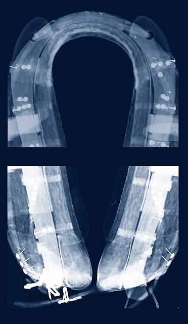 radiografia ,collera