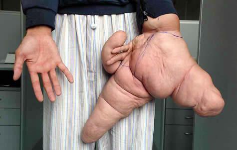 14 Manusia dengan Bentuk Tubuh Teraneh di Dunia: Lui Hua, Tangan Terbesar di Dunia