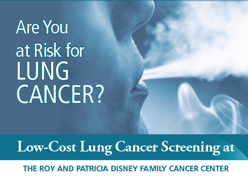 No association between lung cancer risk in women and reproductive history or hormone use