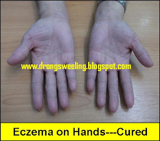 eczema and diet