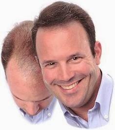 tratamiento para la calvicie en hombres