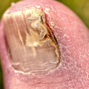 how to fix rotten toe nails