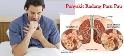 http://mustahabbah.blogspot.com/2016/01/5-cara-alami-sembuhkan-radang-paru-paru.html
