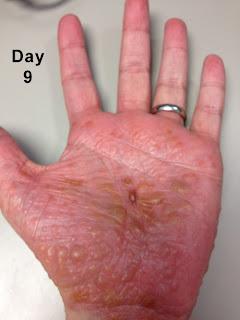 why eczema