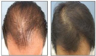 cara cepat menumbuhkan rambut botak dengan obat tradisional