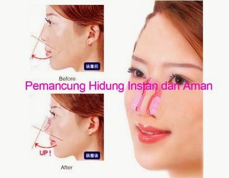 Cara Membedakan Nose Up Asli Dan Palsu alat Pemancung Hidung Asli
