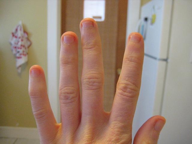 Eating Disorder Blog - Overtaking Edith: Biting my Nails