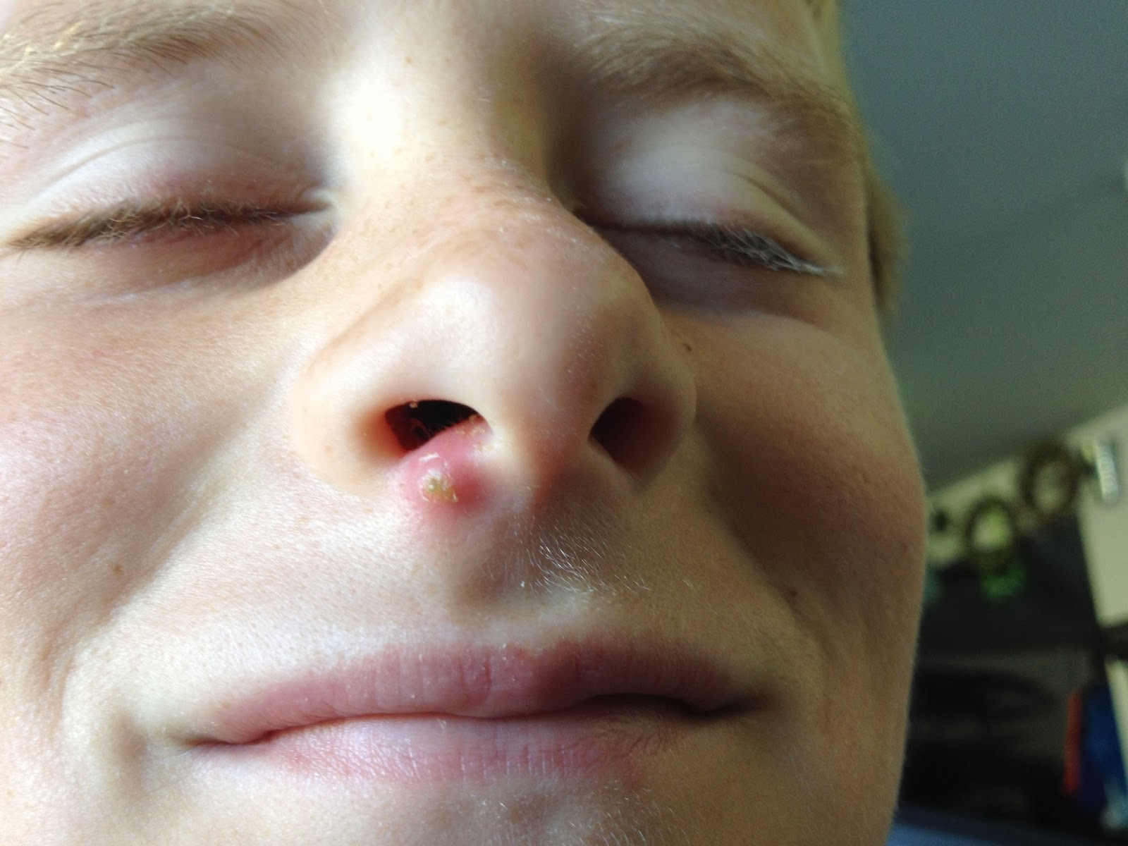 how to fix a blind pimple