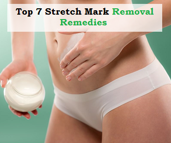 Top 7 Stretch Mark Removal Remedies