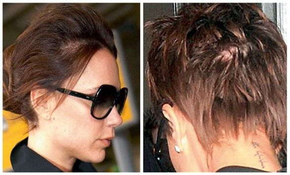 Selston cosmetic clinic hair extensions hair loss nottingham victoria beckham pmusecretfo Gallery