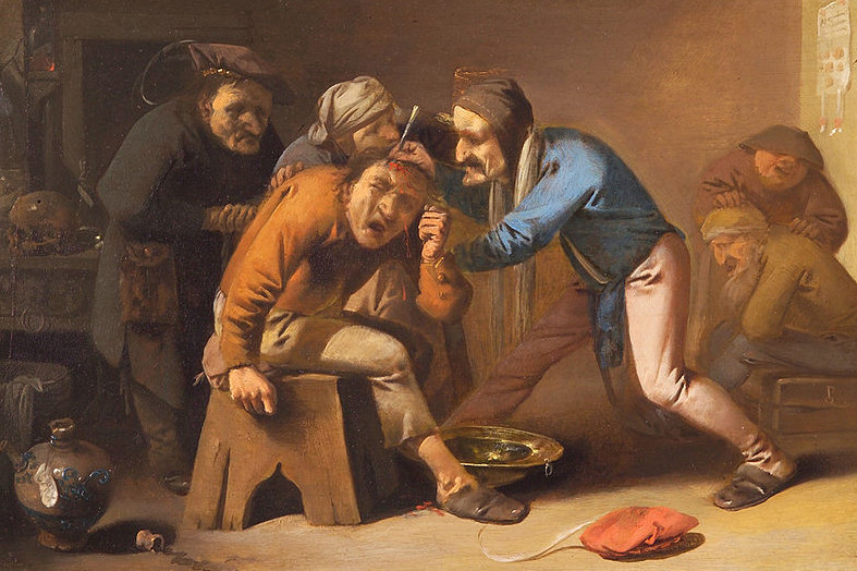 Three men extracting a stone (of folly) from a conscious patient's head