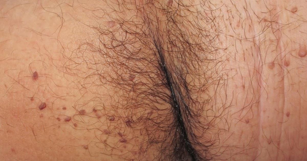 Los síntomas de las manchas de pigmento