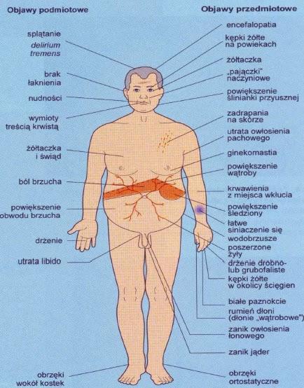 choroby wątroby
