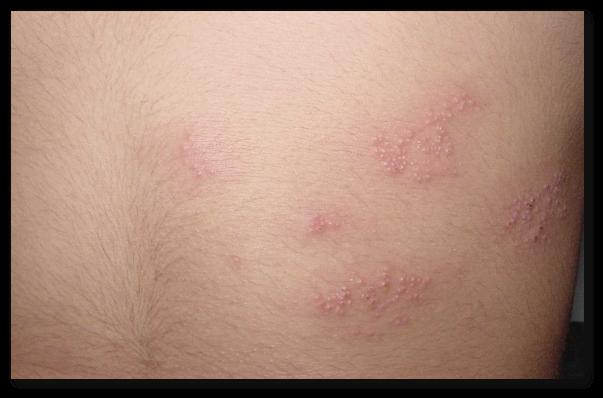 Zona zoster - remedii pentru atenuarea simptomelor bolii