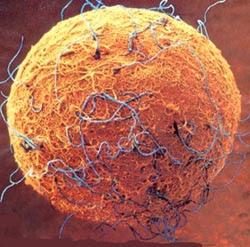 neurone ingrandito al microscopio