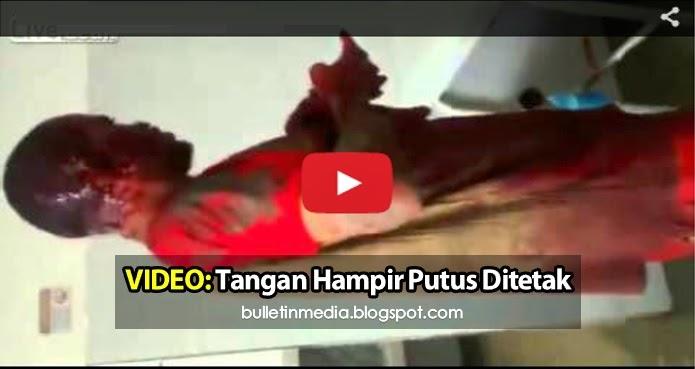 Video Ngeri: Tangan lelaki ini hampir putus ditetak dengan parang