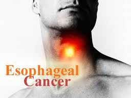cancer of the esophagus prognosis