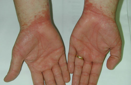 Las cicatrices después de la operación en varikoz