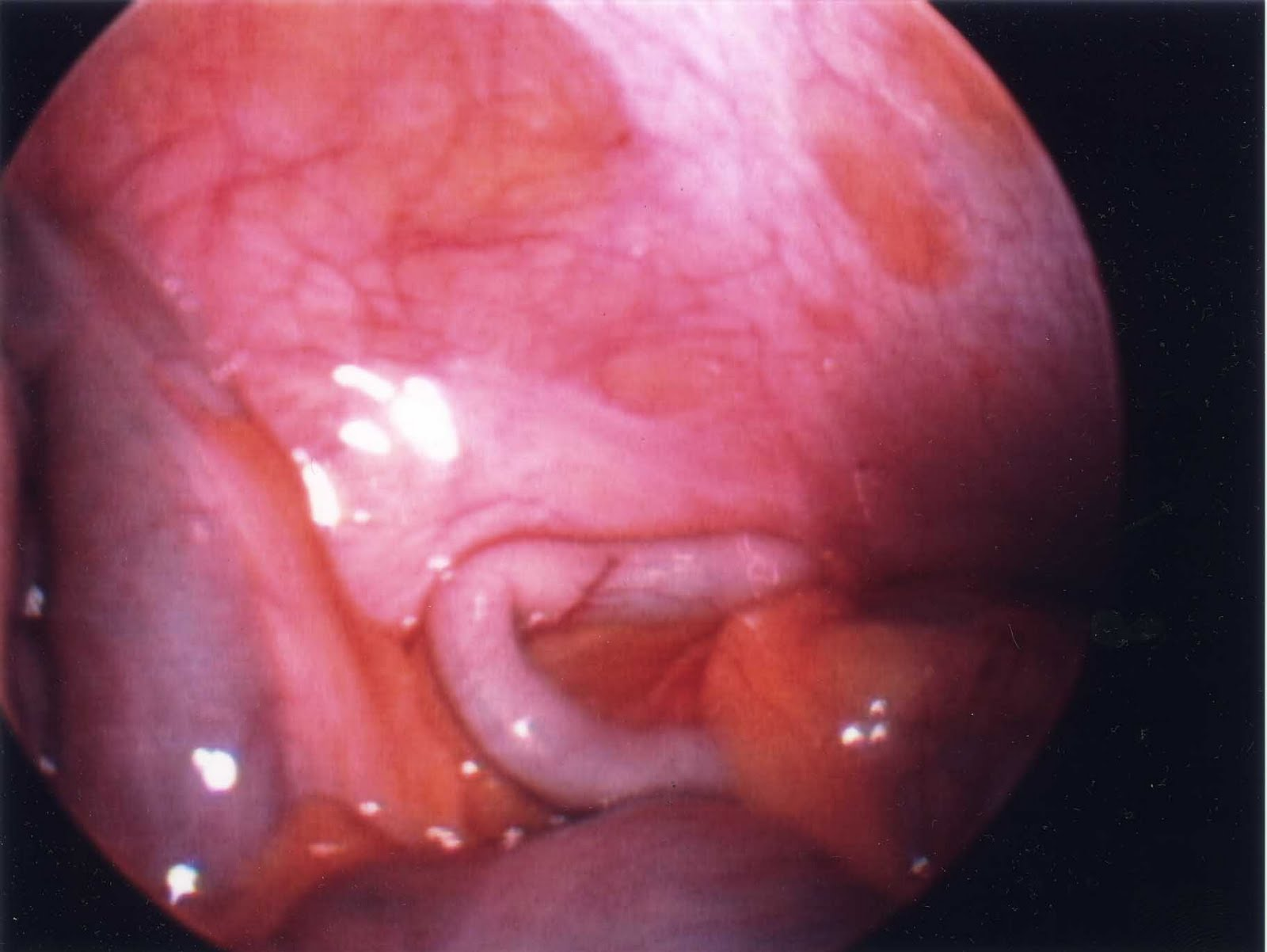 Normal_appendix_surgically_reoved_appendix+%281%29.jpg