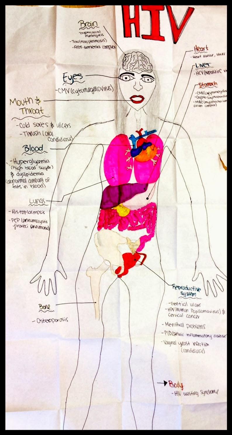 The Effects HIV Has On The Anatomy | AJ\'s GCE Portfolio