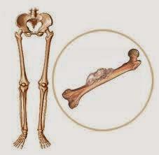 Penyebab Kanker Tulang Dan Gejala Kanker Tulang
