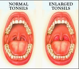 Tonsil Stones Treatment