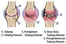 Mencegah Tulang dan Kerusakan Sendi